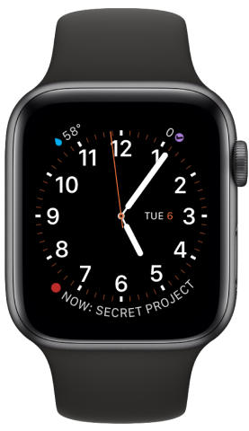 A screenshot of Matt's Apple Watch.